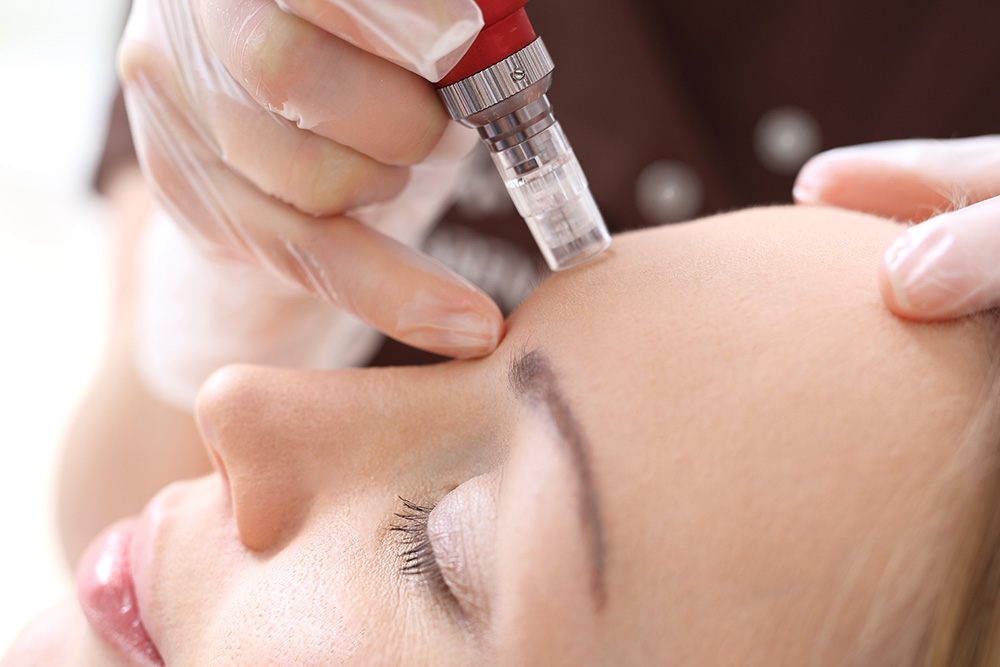 Dermapen Skin Needling Treatment | Anti-Ageing Treatment | Sea Beauty North Beach
