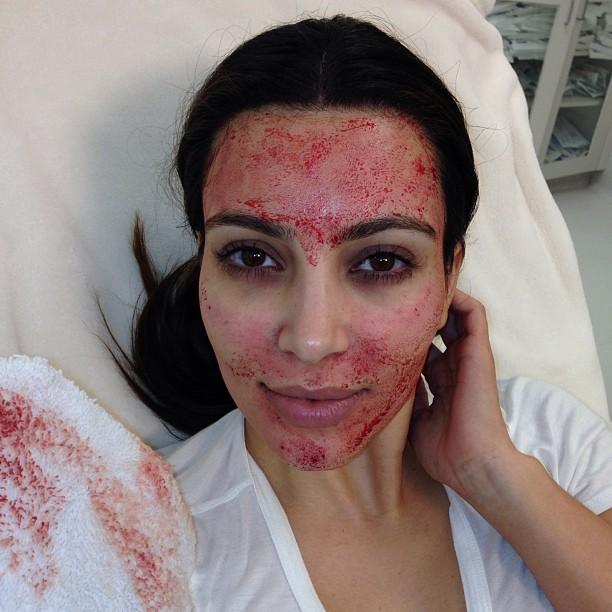Candice Swanepoel and Kim Kardashian love the PRP Facial | Sea beauty North Beach